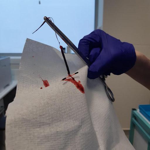 IUD coil removal