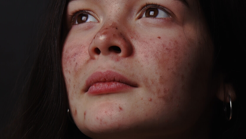 best contraceptive pill for acne